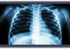 CHEK Upside: Hospital foundation starts fundraising for new X-ray machine